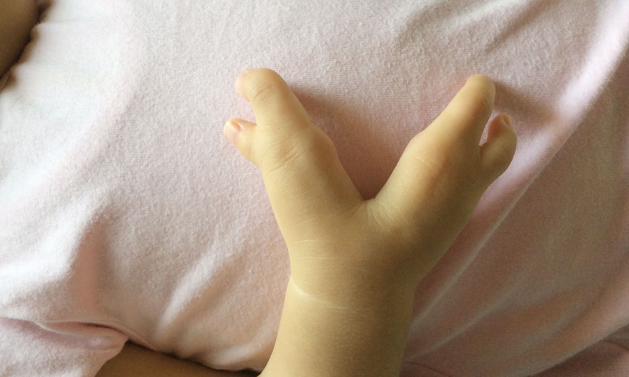 右手 首 欠損 症